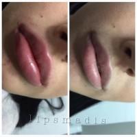 Увеличение, коррекция губ