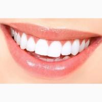 Отбелить зубы в Киеве. Услуги профессионального аппаратного отбеливания зубов в г. Киев