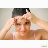 Лечение угревой болезни