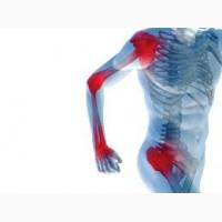Лечение суставов: методы, препараты, терапия