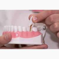 Имплантация зубов в Одессе по доступным ценам