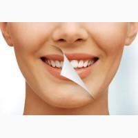 Отбеливание зубов в Одессе: стоимость