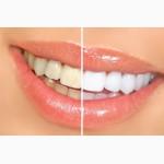 Система відбілювання зубів Dent 3D White