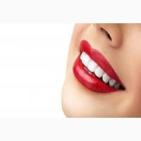 Профессиональное аппаратное Отбеливание зубов системой Beyond Polys Киев