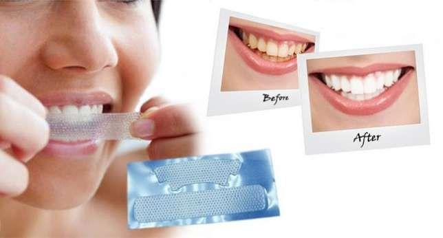 Отбеливание зубов в уфе цены отзывы