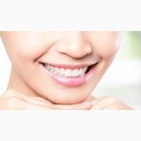 Аппаратное отбеливание зубов системой Beyond Polus от 4 до 10 оттенков Киев