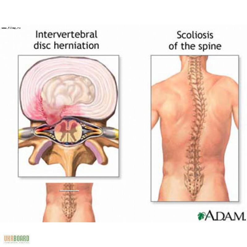 Лечение суставов и позвоночника харьков показать плечевой сустав