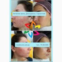 Лечение Демодекса с гарантией! в Одессе