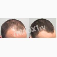 Просто Minoxidil средство для волос тренд