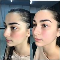 Ламинирование и Botox ресниц