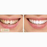 Реставрация зубов (стоматология от Kravchenko Medical Centre) на ул. Сечевых Стрельцов 5Б