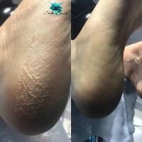 Аппаратный маникюр и педикюр, покрытие гель-лаком