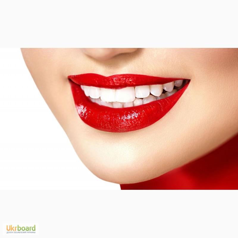 Скидки, Отбеливание зубов, купоны от Biglion в Москве