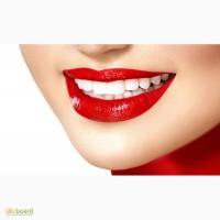 Отбеливание зубов Киев (стоматология) на ул. Сечевых Стрельцов 5-Б, Лукьяновская